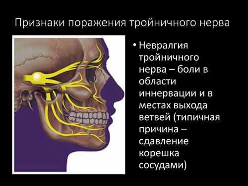 Невропатия