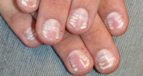 Какой цвет ногтей тебе подойдет