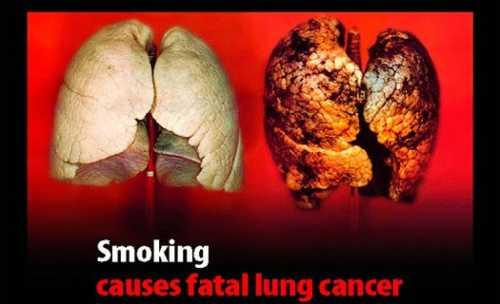Курение провоцирует агрессивный и смертельный рак
