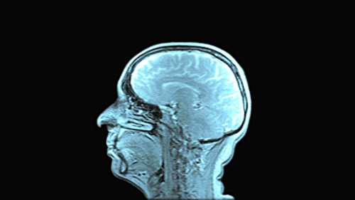 Сканирование мозга установило