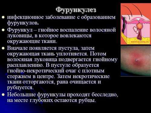 Фурункулёз: симптомы, причины, это заболевание