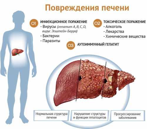 Симптомы болезни печени Заболевания печени